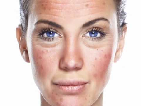 how to clear skin pigmentation