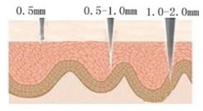 Derma Rollers How They Work Dermaroller Therapy Skin